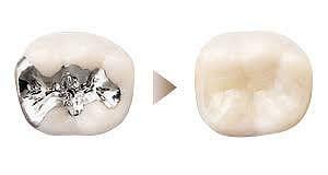 銀歯でお悩みの方へ(メタルフリー)