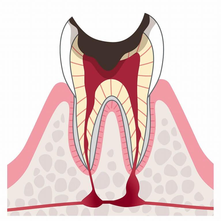 C4 歯の根のむし歯