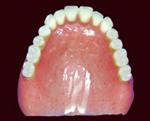 補強床使用義歯
