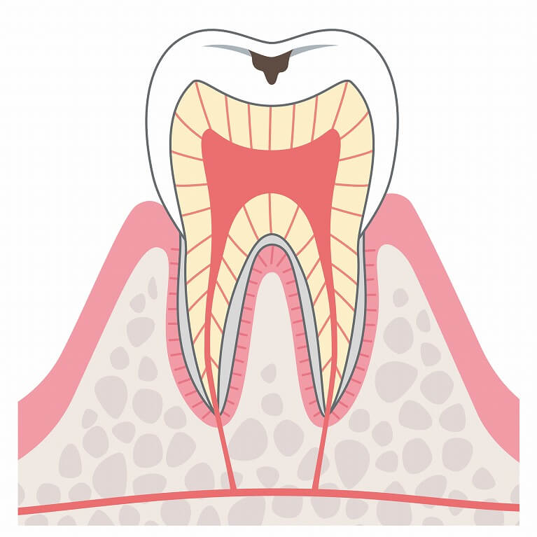 むし歯の進行と症状