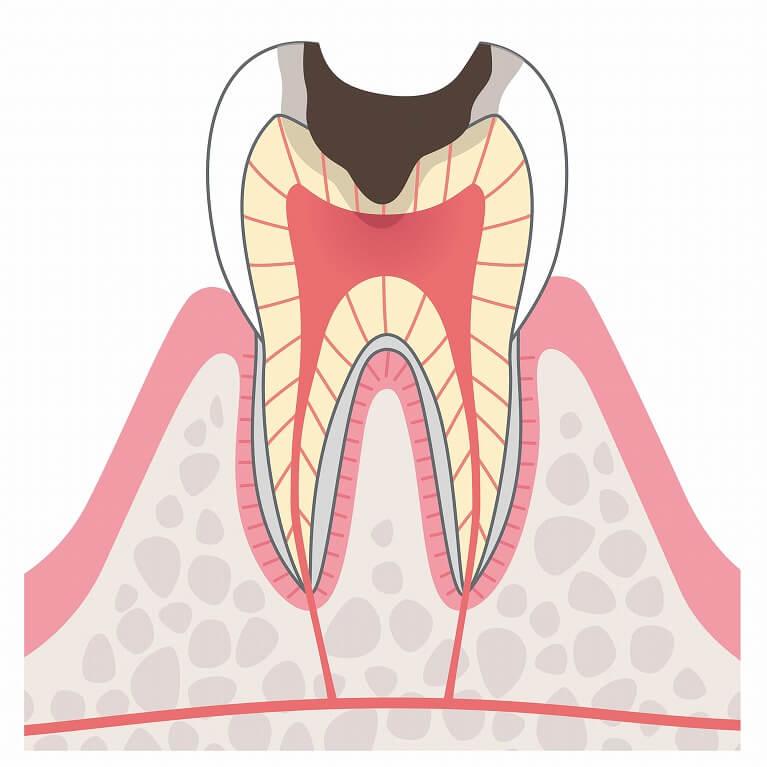 C3 歯の神経のむし歯